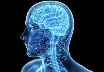 mrt-s-kontrastirovaniem-golovnogo-mozga-magnamed